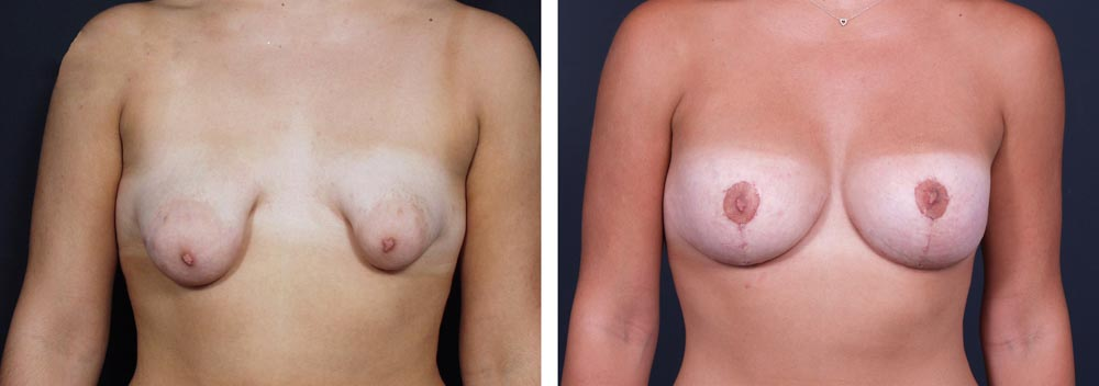 Breast Revision Patient 3 | Dr. Shaun Parson Plastic Surgery, Scottsdale, Arizona