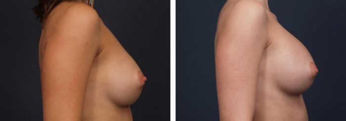 Breast Revision Patient 4 | Dr. Shaun Parson Plastic Surgery, Scottsdale, Arizona