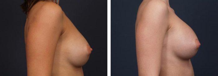 Breast Revision Patient 4 | Dr. Shaun Parson Plastic Surgery, Scottsdale, Arizona