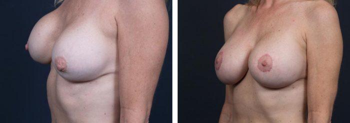 Breast Revision Patient 5 | Dr. Shaun Parson Plastic Surgery, Scottsdale, Arizona