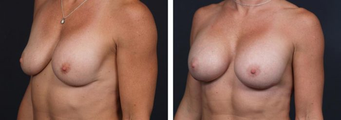 Breast Revision Patient 6 | Dr. Shaun Parson Plastic Surgery, Scottsdale, Arizona