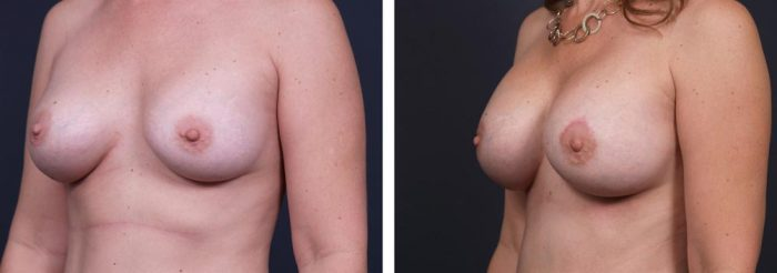 Breast Revision Patient 7 | Dr. Shaun Parson Plastic Surgery, Scottsdale, Arizona