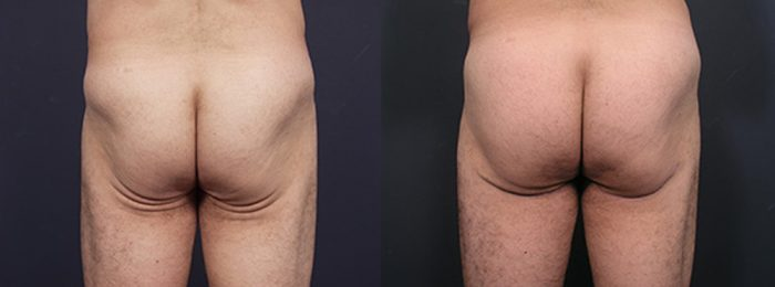 Butt Lift Patient 3 | Dr. Shaun Parson Plastic Surgery, Scottsdale, Arizona