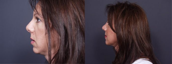 Chin Implant Patient 5 | Dr. Shaun Parson Plastic Surgery, Scottsdale, Arizona
