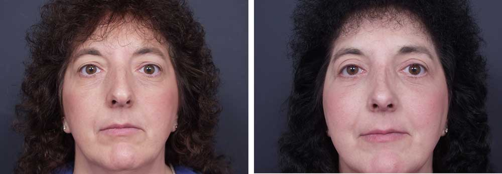 Rhinoplasty Patient 3 | Dr. Shaun Parson Plastic Surgery, Scottsdale, Arizona
