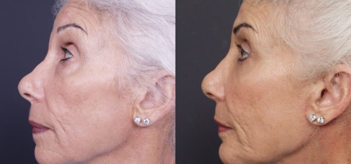 Chin Implant Patient 6 | Dr. Shaun Parson Plastic Surgery, Scottsdale, Arizona