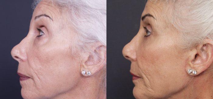 Chin Implant Patient 6 | Dr. Shaun Parson Plastic Surgery, Scottsdale, Arizona