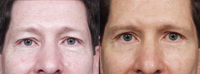 Eyelid Surgery Patient 6   Dr. Shaun Parson Plastic Surgery, Scottsdale, Arizona