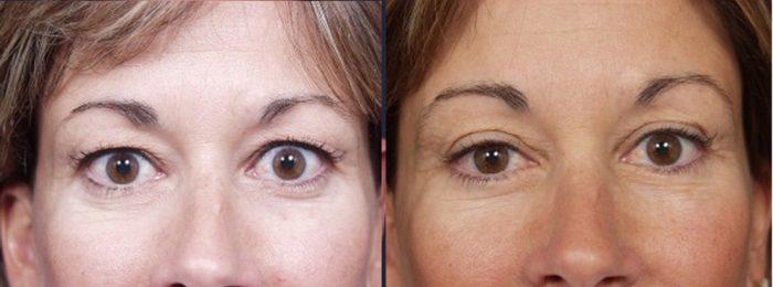 Eyelid Surgery Patient 11   Dr. Shaun Parson Plastic Surgery, Scottsdale, Arizona