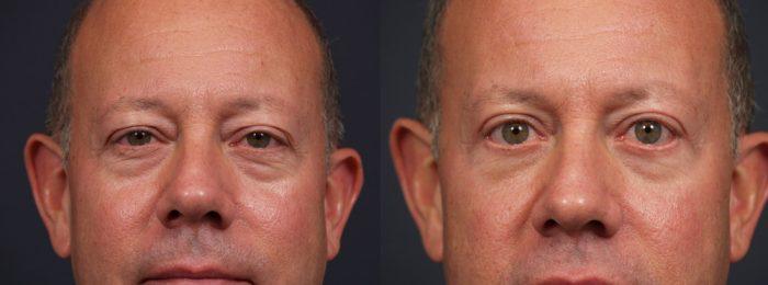 Eyelid Surgery Patient 12 | Dr. Shaun Parson Plastic Surgery, Scottsdale, Arizona