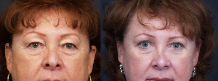 Eyelid Surgery Patient 13   Dr. Shaun Parson Plastic Surgery, Scottsdale, Arizona