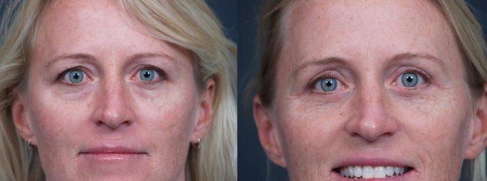 Eyelid Surgery Patient 14 | Dr. Shaun Parson Plastic Surgery, Scottsdale, Arizona