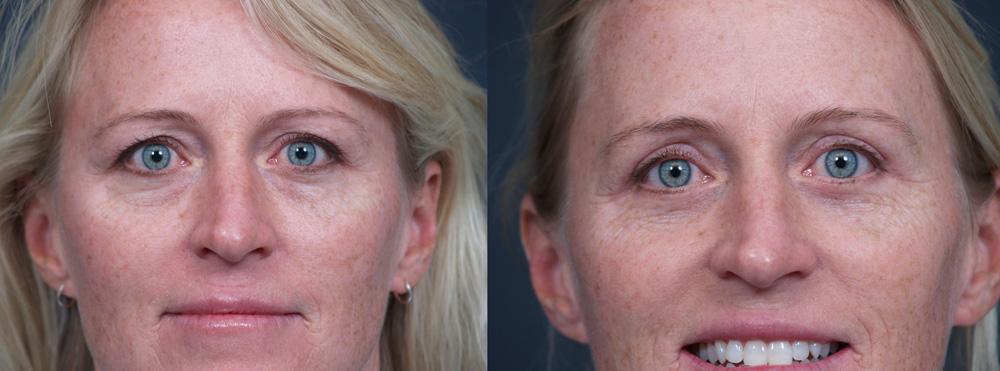 Eyelid Surgery Patient 14   Dr. Shaun Parson Plastic Surgery, Scottsdale, Arizona