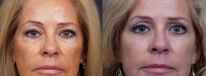 Eyelid Surgery Patient 15   Dr. Shaun Parson Plastic Surgery, Scottsdale, Arizona
