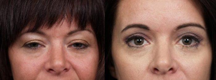 Eyelid Surgery Patient 16   Dr. Shaun Parson Plastic Surgery, Scottsdale, Arizona