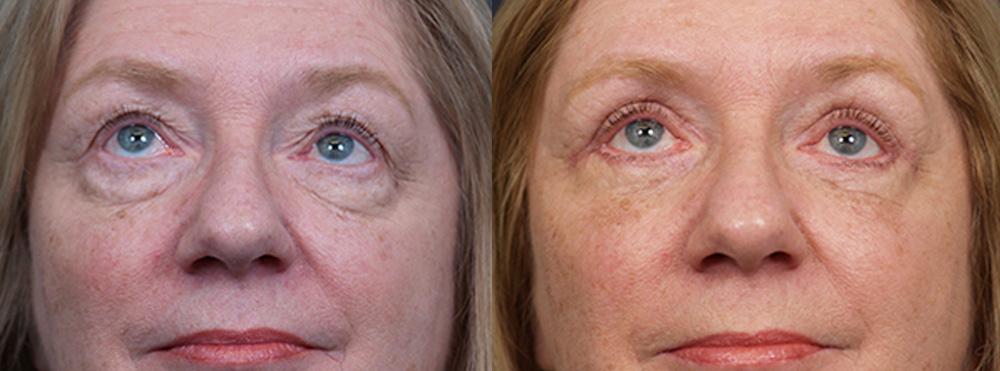 Eyelid Surgery Patient 17 | Dr. Shaun Parson Plastic Surgery, Scottsdale, Arizona