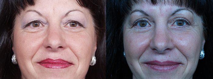 Eyelid Surgery Patient 18   Dr. Shaun Parson Plastic Surgery, Scottsdale, Arizona