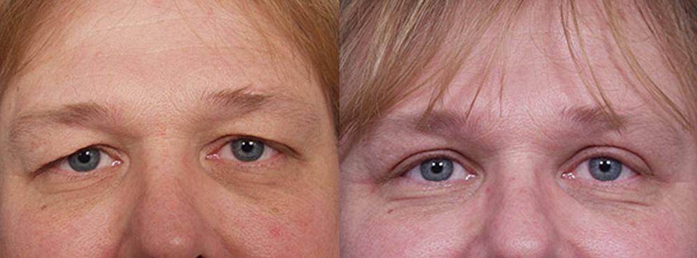 Eyelid Surgery Patient 6 | Dr. Shaun Parson Plastic Surgery, Scottsdale, Arizona
