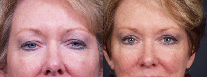 Eyelid Surgery Patient 7   Dr. Shaun Parson Plastic Surgery, Scottsdale, Arizona