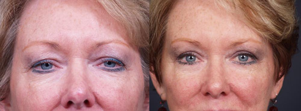 Eyelid Surgery Patient 7 | Dr. Shaun Parson Plastic Surgery, Scottsdale, Arizona