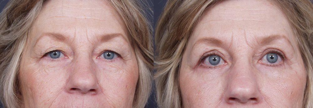 Eyelid Surgery Patient 8 | Dr. Shaun Parson Plastic Surgery, Scottsdale, Arizona