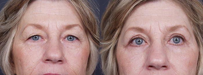 Eyelid Surgery Patient 8   Dr. Shaun Parson Plastic Surgery, Scottsdale, Arizona