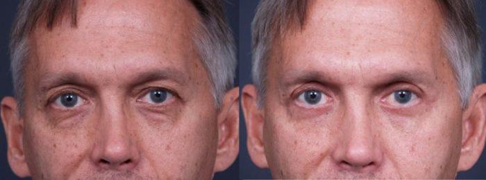 Eyelid Surgery Patient 9   Dr. Shaun Parson Plastic Surgery, Scottsdale, Arizona