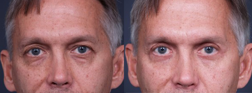 Eyelid Surgery Patient 9 | Dr. Shaun Parson Plastic Surgery, Scottsdale, Arizona