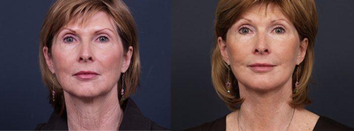Facelift Patient 10   Dr. Shaun Parson Plastic Surgery, Scottsdale, Arizona