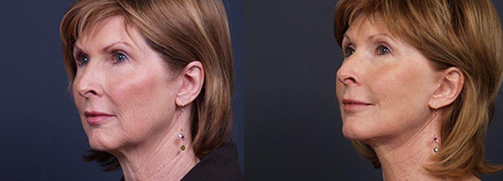 Facelift Patient 10 | Dr. Shaun Parson Plastic Surgery, Scottsdale, Arizona