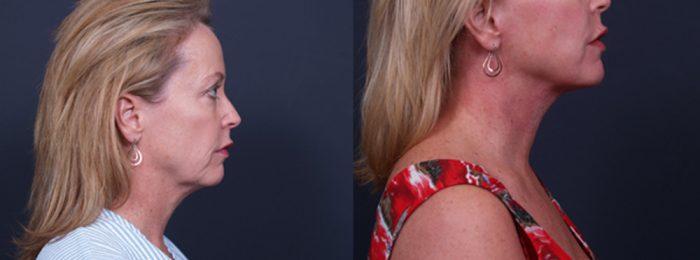 Facelift Patient 13   Dr. Shaun Parson Plastic Surgery, Scottsdale, Arizona
