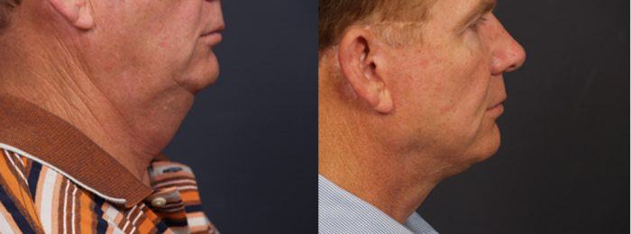 Facelift Patient 10 | Dr. Shaun Parson Plastic Surgery, Scottsdale, Arizona