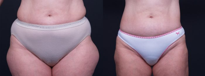 Liposuction Patient 10 | Dr. Shaun Parson Plastic Surgery, Scottsdale, Arizona