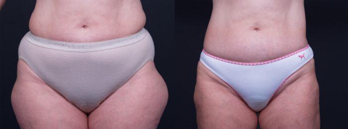 Liposuction Patient 10 | Dr. Shaun Parson Plastic Surgery, Scottsdale, Arizona