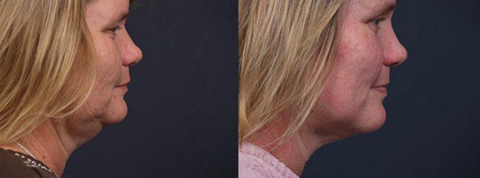 Liposuction Patient 11 | Dr. Shaun Parson Plastic Surgery, Scottsdale, Arizona