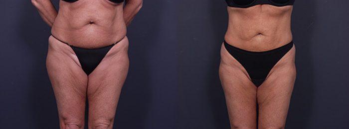 Liposuction Patient 12 | Dr. Shaun Parson Plastic Surgery, Scottsdale, Arizona
