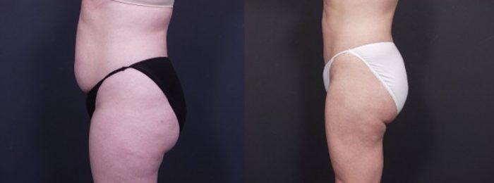 Liposuction Patient 13 | Dr. Shaun Parson Plastic Surgery, Scottsdale, Arizona