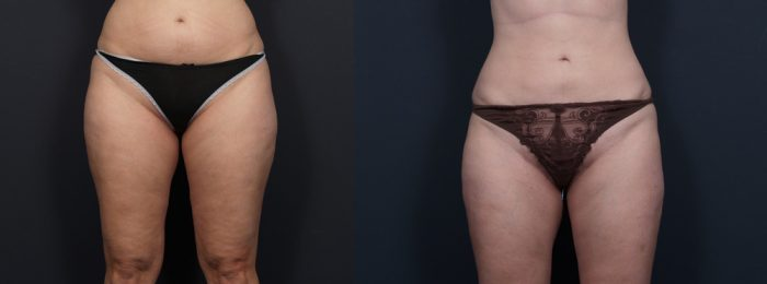 Liposuction Patient 8 | Dr. Shaun Parson Plastic Surgery, Scottsdale, Arizona