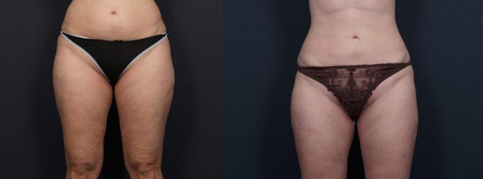 Liposuction Patient 8 | Dr. Shaun Parson Plastic Surgery, Scottsdale, Arizona