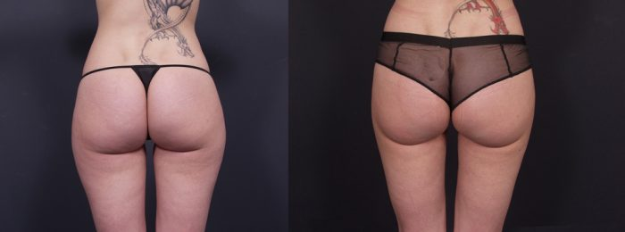 Liposuction Patient 9 | Dr. Shaun Parson Plastic Surgery, Scottsdale, Arizona
