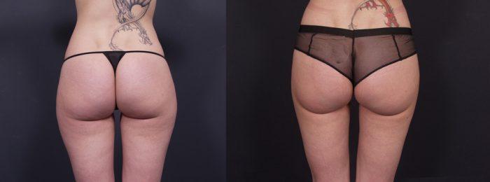 Liposuction Patient 9 | Dr. Shaun Parson Plastic Surgery, Scottsdale, Arizona