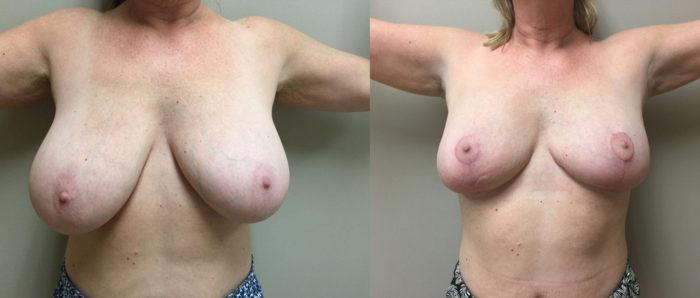 Breast Lift Patient 11 | Dr. Shaun Parson Plastic Surgery Scottsdale Arizona