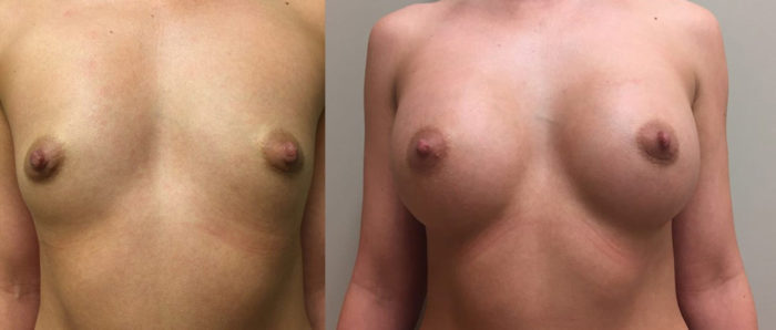 Breast Augmentation Patient 22 | Dr. Shaun Parson Plastic Surgery, Scottsdale, Arizona