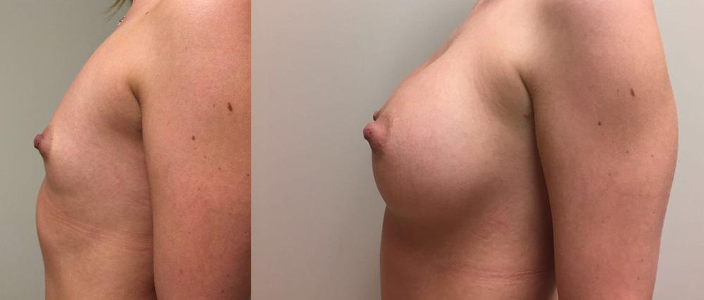 Breast Augmentation Patient 22 | Dr. Shaun Parson Plastic Surgery, Scottsdale, Arizona