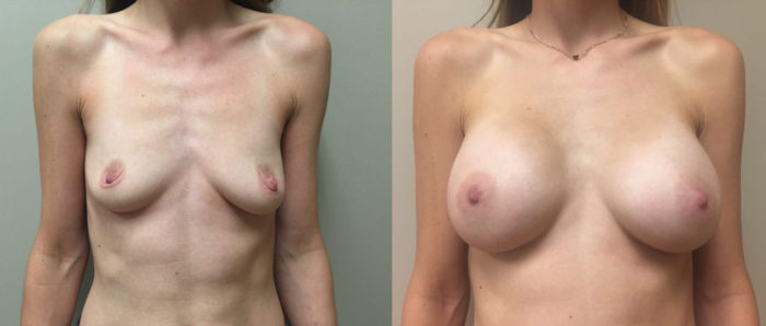 Breast Augmentation Patient 23 | Dr. Shaun Parson Plastic Surgery Scottsdale Arizona