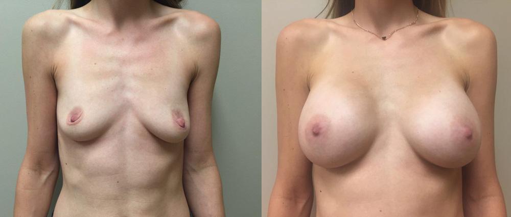 Breast Augmentation Patient 23 | Dr. Shaun Parson Plastic Surgery Scottsdale Arizona