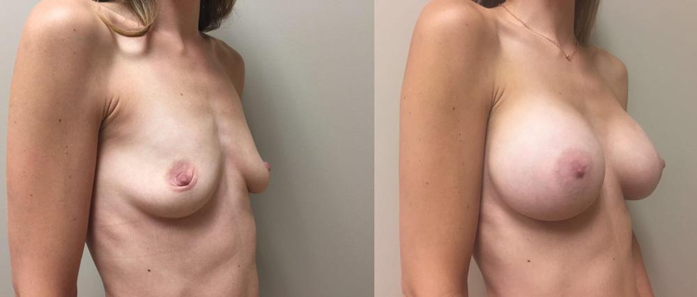 Male Breast Reduction - RealSelfcom