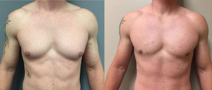 Gynecomastia Patient 8 | Dr. Shaun Parson Plastic Surgery Scottsdale Arizona