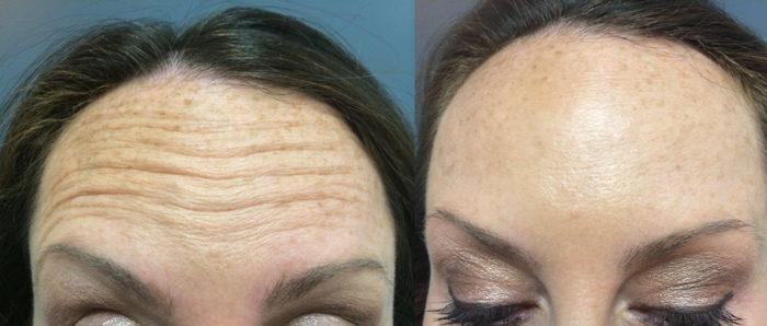 Botox Patient 3 | Dr. Shaun Parson Plastic Surgery Scottsdale Arizona