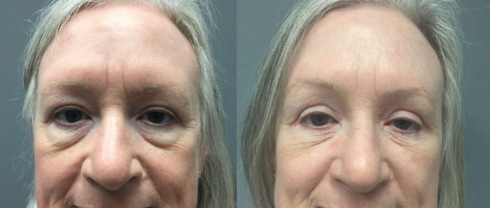 Eyelid Surgery Patient 19   Dr. Shaun Parson Plastic Surgery, Scottsdale, Arizona